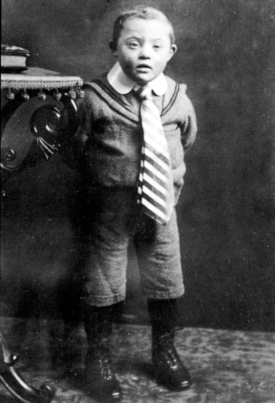Disabled Child - one of the Victims of Adolf Hitler's Nazi Mass Murder of Disabled